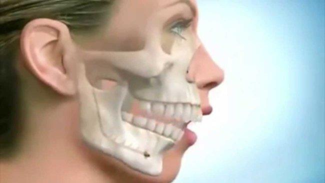 Челюстно-лицевая хирургия